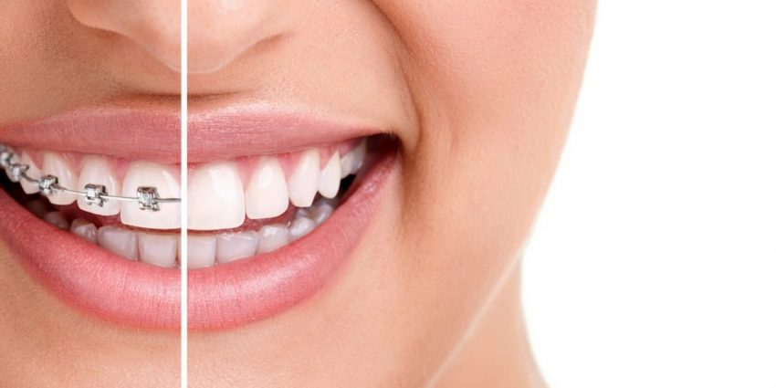 Best Way to Straighten Teeth - Tips and Advice